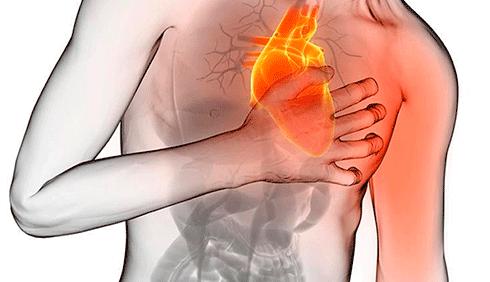 consultor responde infarto